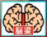 脳梁のイラスト